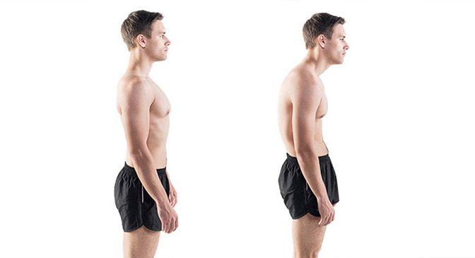 Poor-posture-man